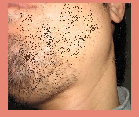 ヒゲの永久脱毛: ヒゲの永久脱毛